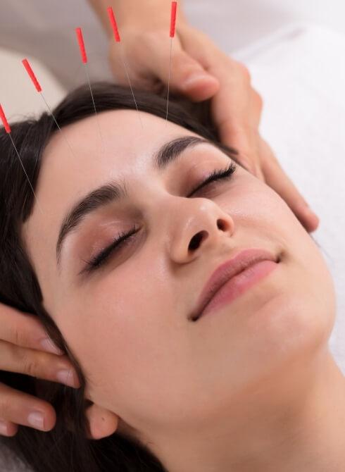 veelgestelde vragen acupunctuur